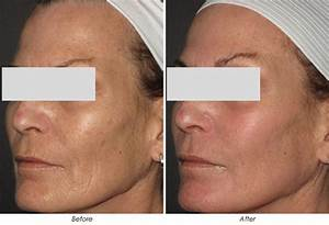 Beauty Tech Review  Fractional Resurfacing Devices - Sandstone Matrix