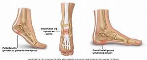 Heel Pain Causes  Symptoms   U0026 Treatment