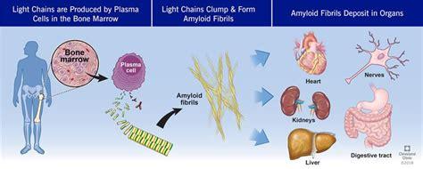 Al Amyloidosis (amyloid Light Chain)