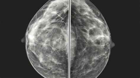 mammogram breast calcification cancer normal healthy does abnormal tumor mamografia imagens sein ressemble quoi mammographie une sur