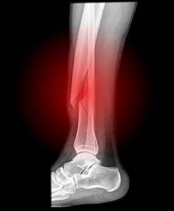 Broken bone - Things You Didn't Know