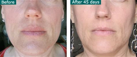 led light therapy before and after photo rejuvenation infrared led light therapy led