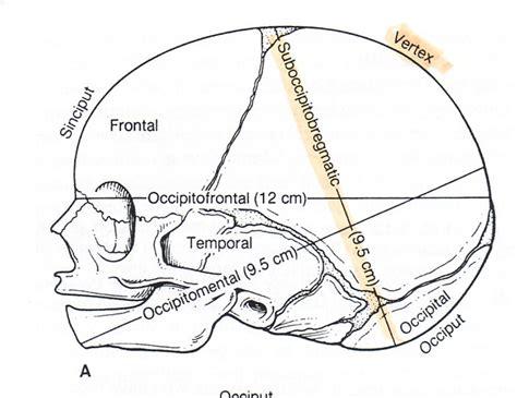 Newborn Diameter Diagram by Fetal Skull Anatomical Terms And Measurements Nursing