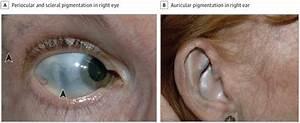 Progressive Bilateral Scleral Pigmentation In A Patient
