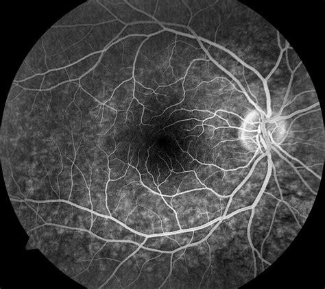 Fluorescein Angiography - Baton Rouge, LA Ophthalmologist