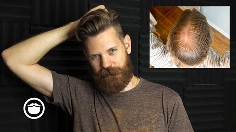 The Biggest Mistake When Dealing with Hair Loss - YouTube