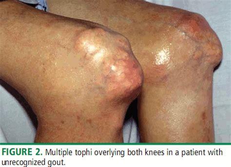 asam urat gout sakit pengapuran rematik asam urat