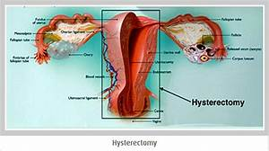 Hysterectomy Gyn Procedure Removes The Uterus Only And