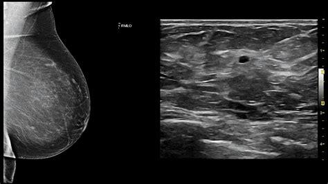 Breast Ultrasound Screening Shaban Breast Clinic