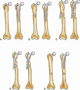 Periprosthetic Hip Fractures   Plastic Surgery Key