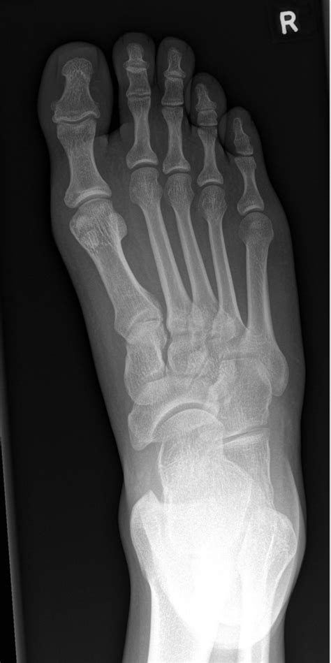 A lisfranc injury is a tarsometatarsal fracture dislocation characterized by traumatic disruption between the articulation of the medial cuneiform and base of the second metatarsal. Les Midfoot Fractures: A Franc Review — Brown Emergency Medicine