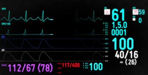 Electrocardiogram Monitor by CarlB | VideoHive