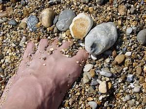 Traitement Radical Mycose, ongles Pieds