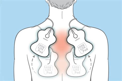 10 Tips For Effective TENS Unit Pad Placement