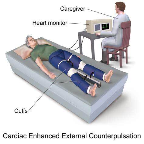External counterpulsation - Wikipedia