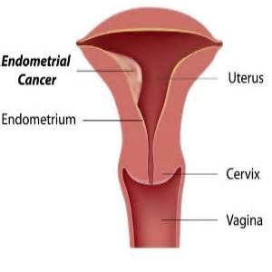 causes and treatments of bleeding after menopause identify the symptoms and treatment for
