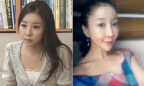 South Korean presenter ruins her looks with drastic jaw