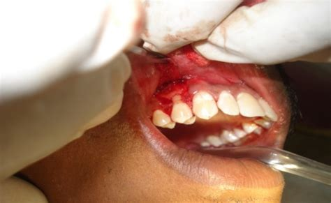 treatment  gingival recession  coronally advanced flap case reports