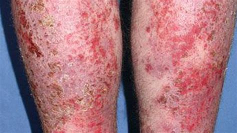 infected eczema pictures treatment removal