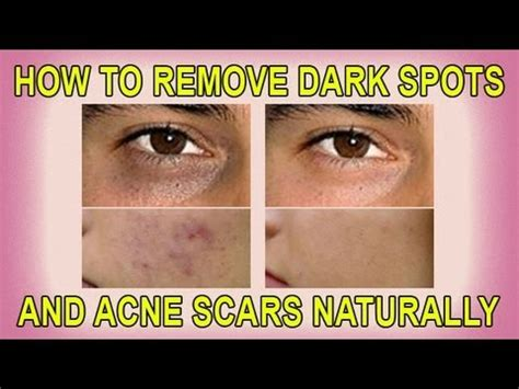 how to remove spots and acne scars naturally