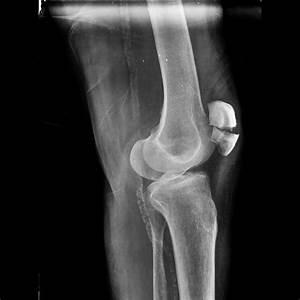 Broken Knee Cap Xray | www.imgkid.com - The Image Kid Has It!