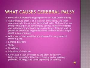 mental palsy