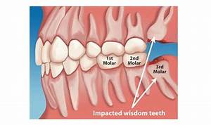 What Is A Wisdom Tooth