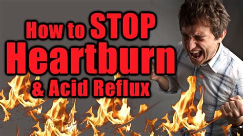 Use These Natural Foods To Stop Acid Reflux And Prevent