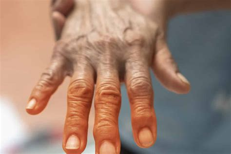 What is Peripheral Neuropathy?   All American Healthcare