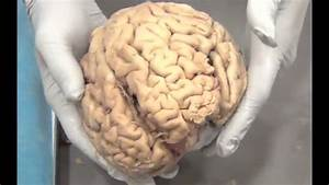 Real Human Brains - Ohsu Brain Fair