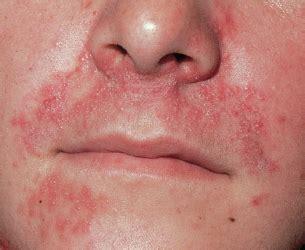 penicillinallergie ursachen symptome mit bildern und