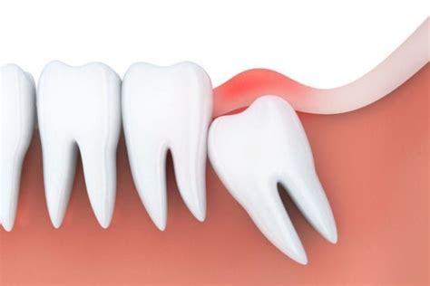 Wisdom teeth removal is surgery to extract wisdom teeth. Bumpy Tooth Extraction Aftercare #dentistafit # ...
