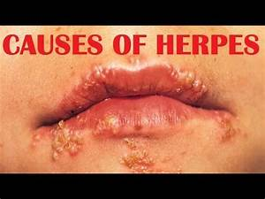 Herpes Simplex Virus : causes, symptoms and treatment ...