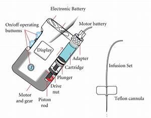 Main Parts Of An Insulin Pump