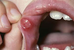 Recurrent Aphthous Stomatitis - Dental Disorders