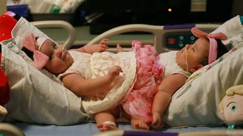 conjoined twins separated  marathon operation driscoll childrens hospital