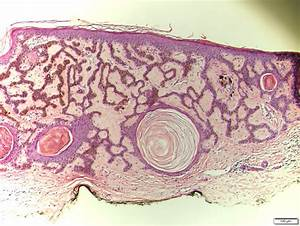 Pathology Outlines - Seborrheic keratosis