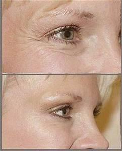 Эффективные процедуры от морщин под глазами