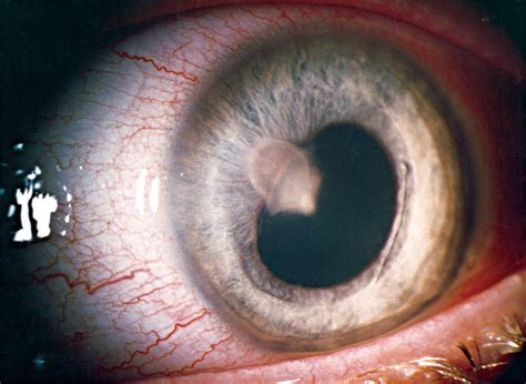 isolated anterior uveitis   initial sign  systemic