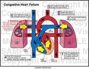 congestive heart failure medical illustration medivisuals
