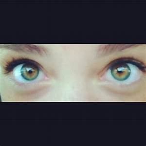Central Sectoral Heterochromia | www.pixshark.com - Images ...