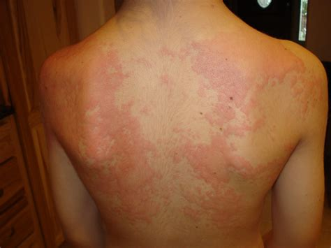 Image Gallery Hives From Wheat Allergy
