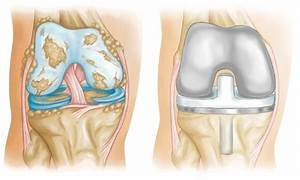 Knee Replacement Implants - Orthoinfo