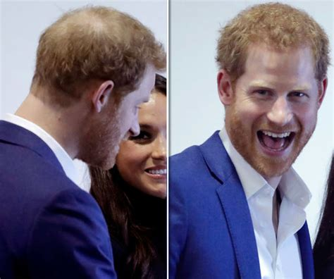 Why are Prince Harry and William going bald? What can you
