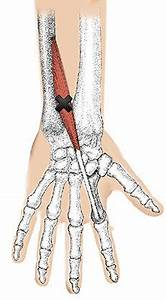 Knee Trigger Point Charts Extensor Indicis