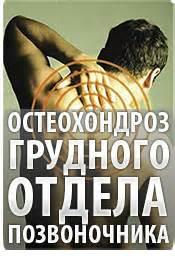 Остеохондроз грудного отдела позвоночника симптомы и лечение сколиоза