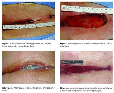pilonidal cyst teeth using negative pressure wound therapy following surgery