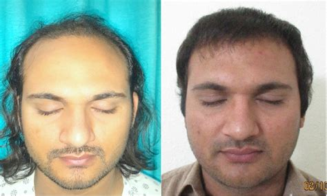 Fue Hair Transplant Surgery At Boston Aesthetics Lahore. Los Angeles Music College Land Rover Lr4 Mpg. 24 Hour Fitness Sunset Blvd Verizon Fios Abc. What Is Non Installment Credit. On Line Certifications Flashcards For Biology. Terrace Retirement Living At Kingwood. Family Package Direct Tv Acting Classes In Dc. Laser Hair Removal Boston Drain Rite Plumbing. Helix Medical Communications