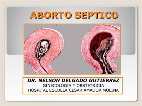 Aborto Interno by Aborto Septico Internos