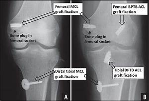 Outcomes At A Minimum Of 2 Years After Medial Collateral